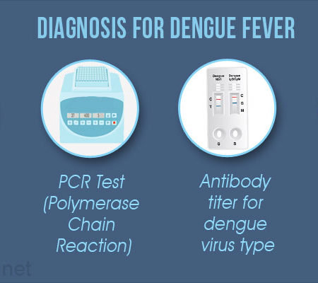 diagnosis-for-dengue-fever